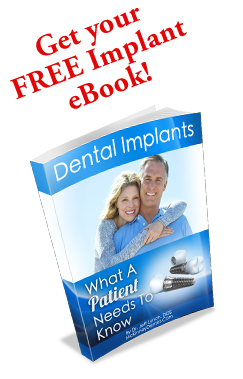 Implant Ebook